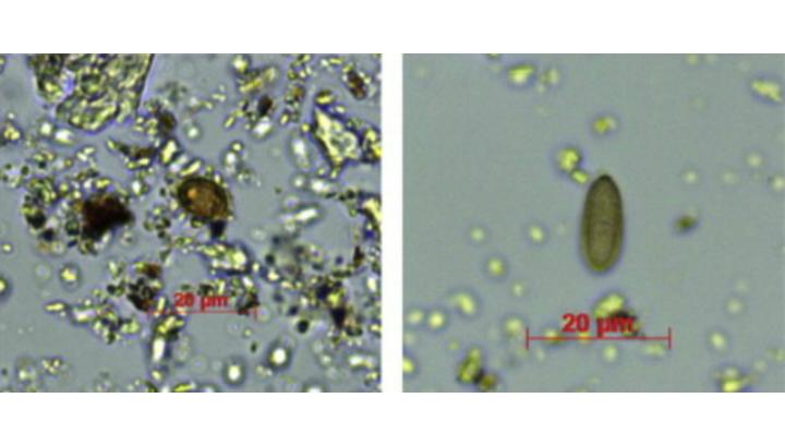 Изображения показывают некоторые микроскопические споры белых грибов в затвердевшем зубном налёте Красной леди Эль-Мирона