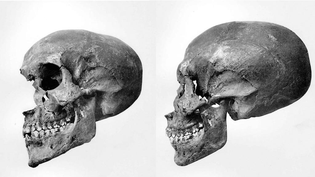 Череп мумии CG61075, предположительно останки Эхнатона. Фото из каталога Смита ╚Царские мумии╩, 1912 / cesras.org