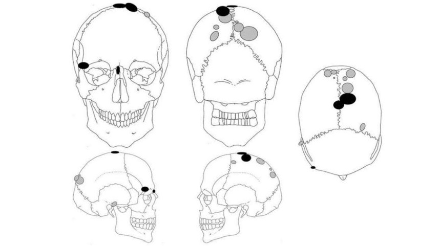 Места увечий на женских (серым цветом) и мужских (чёрным цветом) черепах.