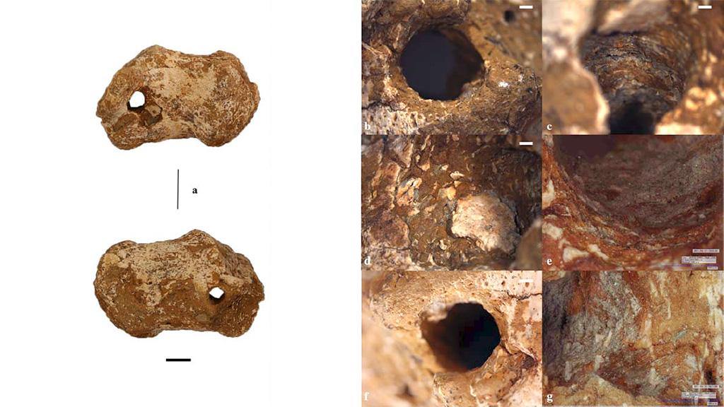 Отверстие в правой пяточной кости скелета из Гавелло. Фото: University of Siena