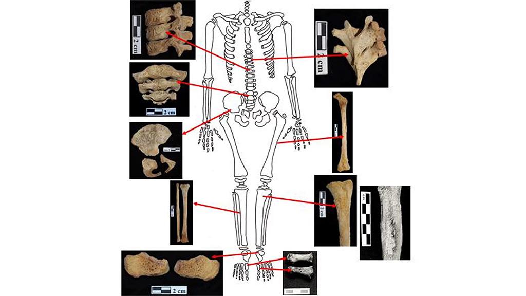 Останки ребенка 3-5 лет из оазиса Дахла. Повреждения на костях вызваны лейкемией. Фото: El Molto