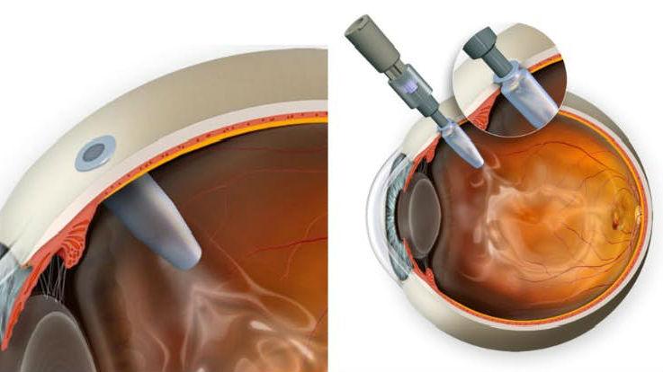 """Резервуар можно пополнять через круглый """"порт"""" (отверстие) на конце устройства, который появляется в виде маленькой точки на поверхности глаза, скрытой под веком."""