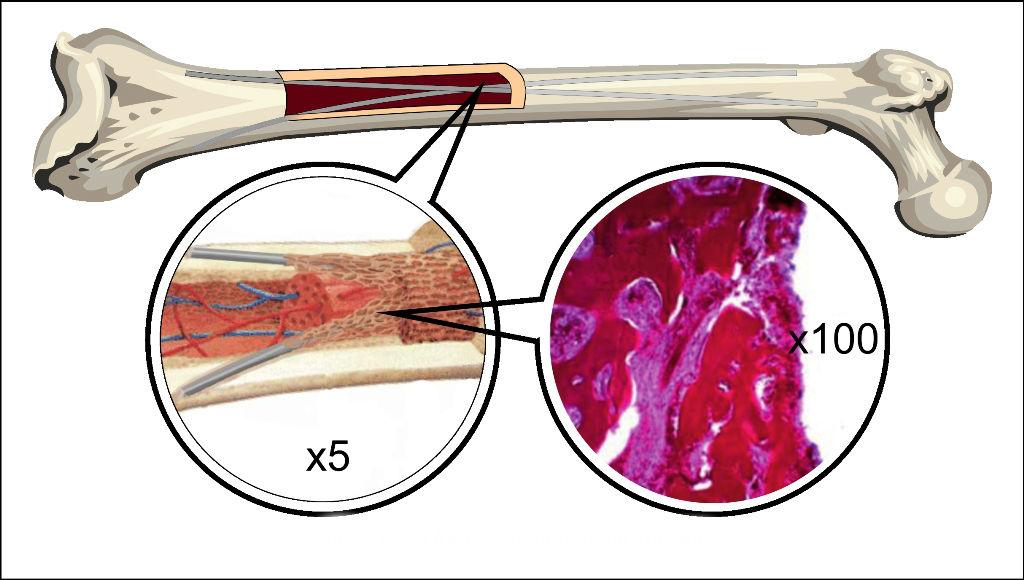 Формирование ткани вокруг имплантата.