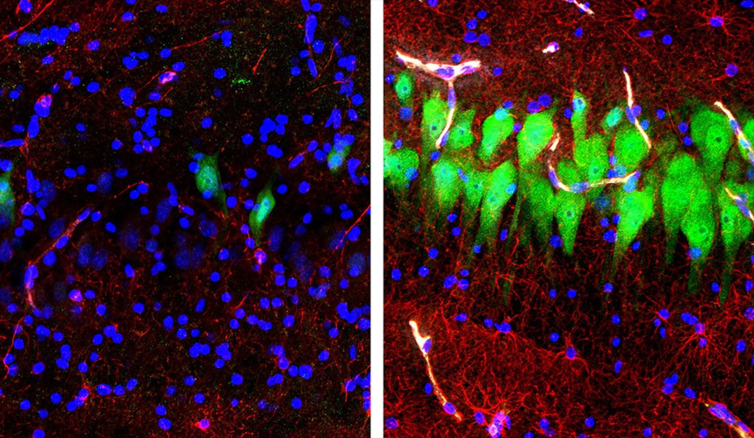Нейроны (зелёные), астроциты (красные) и ядра клеток (синие) в гиппокампальной области мозга свиней. Изображение слева – это мозг животного из контрольной группы, а изображение справа – мозг, подпитан