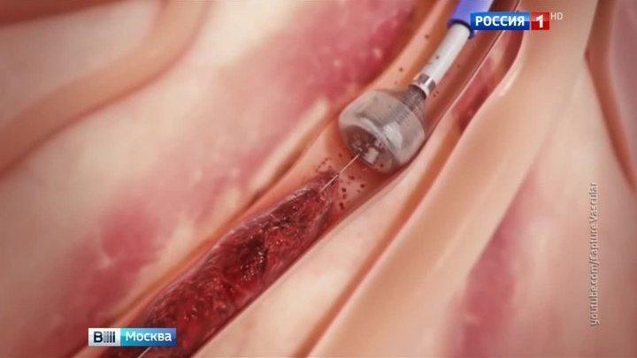 Московские хирурги спасли немецкого туриста от инсульта