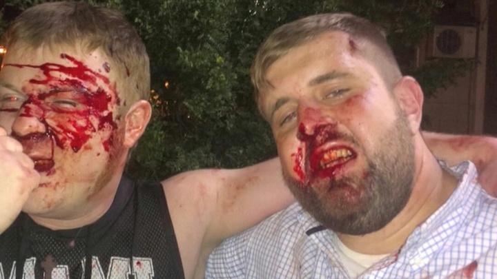 Бухнуть и подраться: журналисты установили личность напавшего на их коллегу