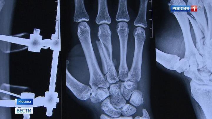 Чудо-техника поможет спасти пациентов с самыми сложными травмами рук