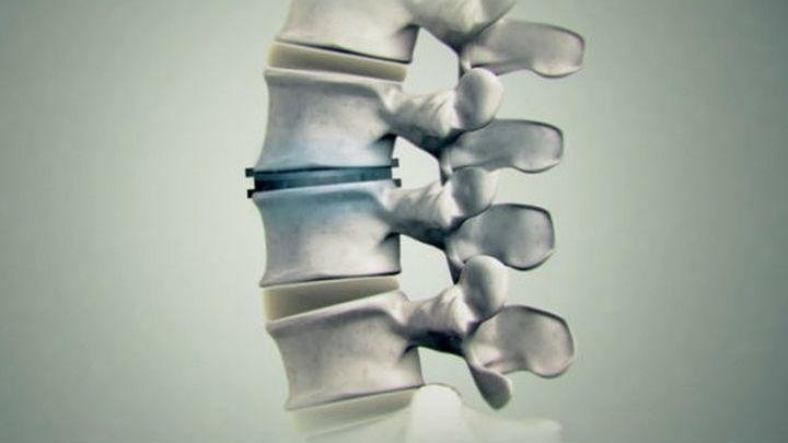 По мнению учёных, такая терапия имеет огромный потенциал для лечения травм позвоночных дисков, а также для восстановления после сложных операций