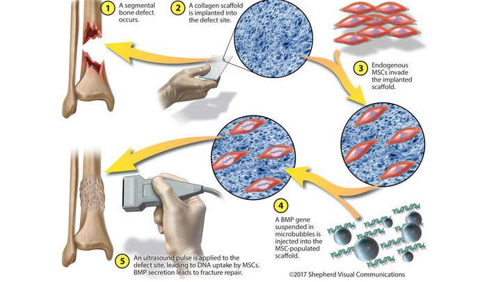 Процесс восстановления кости новым методом.