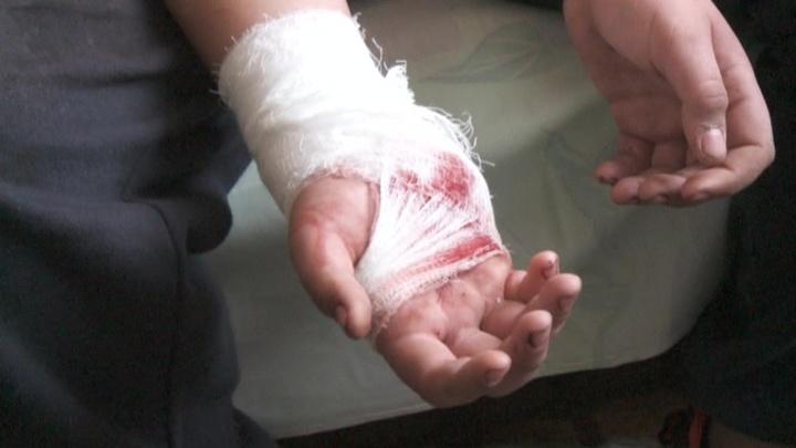 Ребенок, раненный в Горловке при подрыве мины, рассказал о трагедии