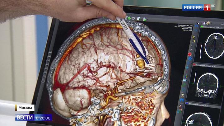 Избавили от аневризмы: уникальная операция от российских хирургов