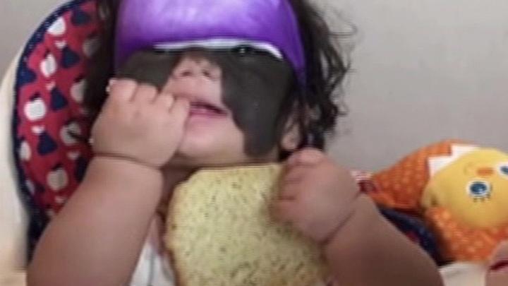 Девочке из США с пятном на все лицо врачи Краснодара сделали первую операцию