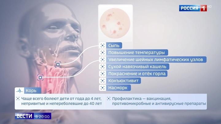 Корь сразу в нескольких регионах России: возможны ли компромиссы с противниками прививок