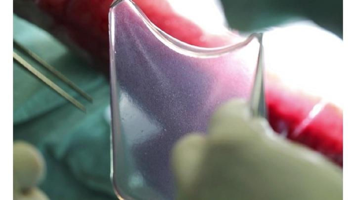 Новая победа генной терапии: неизлечимое заболевание кожи – больше не приговор