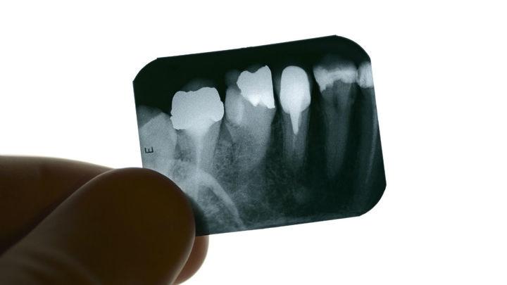 Остаться в живых: новый гидрогель спасёт зуб от смерти после лечения корневого канала