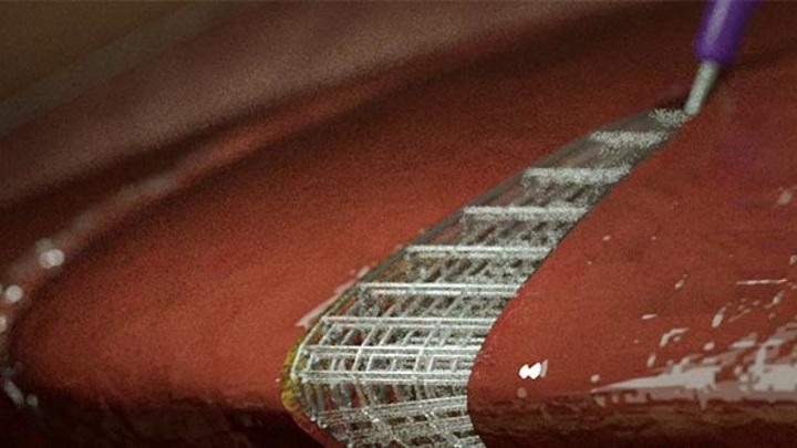 Изображение трёхмерной сетки, имплантированной напрямую в мягкие ткани живого организма.