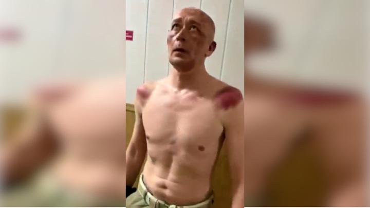 Пензенский адвокат пожаловался на пытки его подзащитного в полиции