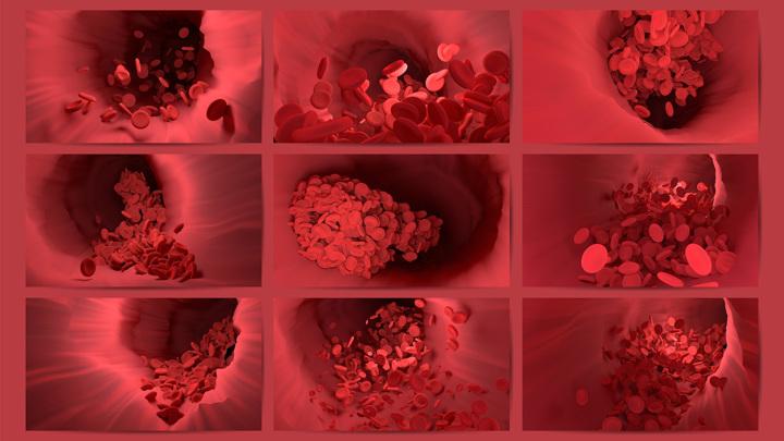 Перемещаясь вместе с кровотоком по сосудам, тромб рано или поздно вызывает их закупорку.