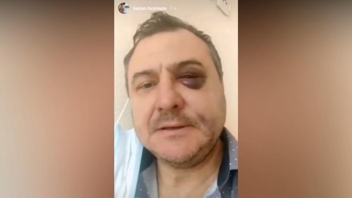 """Экс-солиста """"Лесоповала"""" избили после концерта в Сочи"""