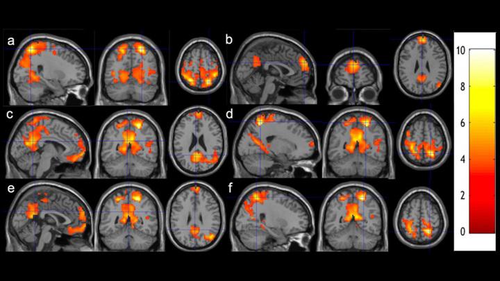 Исследователи сканировали мозг студентов до и после восьми недель занятий медитацией.