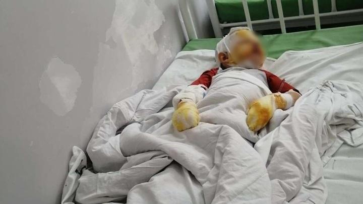Четырехлетний мальчик получил серьезные ожоги во время прогулки с отцом